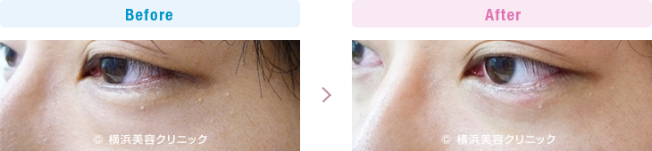 目の下の膨らみが減ることにより、クマっぽい印象が改善します。(切らない目の下のくま・ふくらみ・脂肪取り)