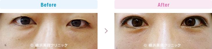 【30代女性】目の下の脂肪取り(くま取り)で目の下の膨らみが減ることによって、疲れた印象が無くなり若返り効果を発揮します。【横浜美容クリニック】