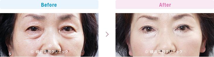 【60代女性】目元が若返っただけで、お顔全体が若返った印象になります。【横浜美容クリニック】