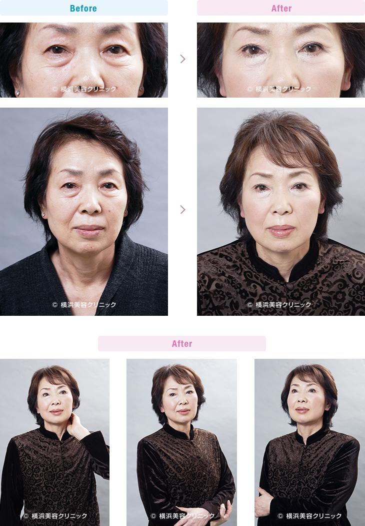 目の周りの若返り 【60代女性】目元が若返っただけで、お顔全体が若返った印象になります。【横浜美容クリニック】