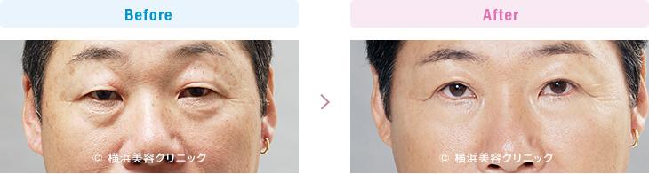 【50代男性】上まぶたのタルミを取り除くことによって目の開きが良くなり、眉を上げるクセによる額のシワや肩こりが改善します【横浜美容クリニック】
