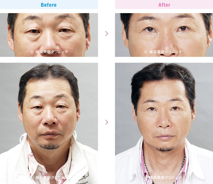 目の周りの若返り 【50代男性】上まぶたのタルミを取り除くことによって目の開きが良くなり、眉を上げるクセによる額のシワや肩こりが改善します。【横浜美容クリニック】