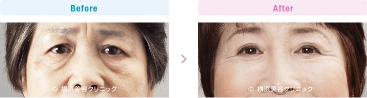【60代女性】目元の若返りだけで、お顔全体の疲れた暗い印象が、明るい印象に改善します。【横浜美容クリニック】