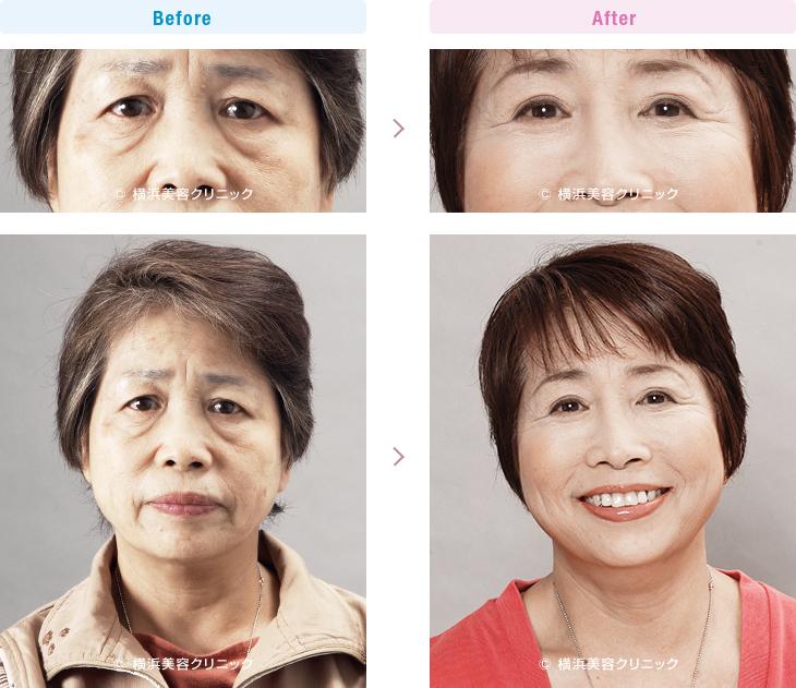 目の周りの若返り 【60代女性】目元の若返りだけで、お顔全体の疲れた暗い印象が、明るい印象に改善します。【横浜美容クリニック】