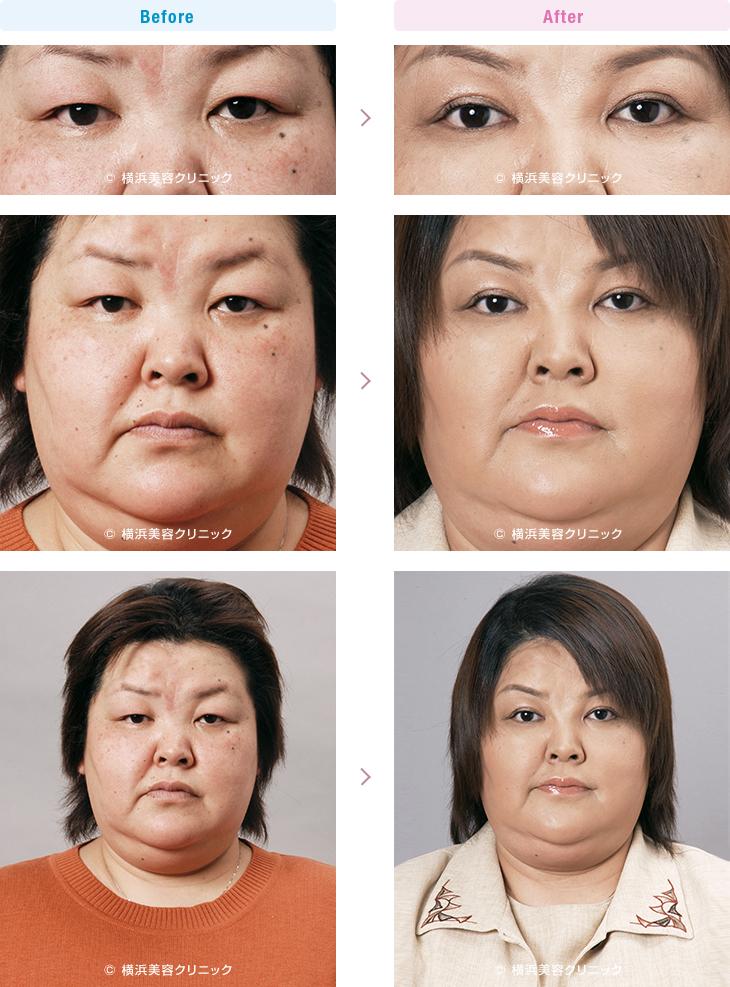 目の周りの若返り 【50代女性】重たい上まぶたの改善には、上まぶたのタルミ取り+脱脂が有効です。【横浜美容クリニック】
