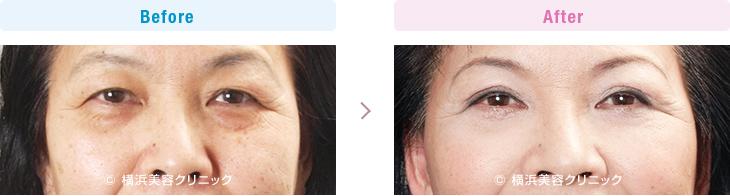 【60代女性】お顔全体の若返りには、フェイスリフト+目の周りのタルミ取りが有効【横浜美容クリニック】