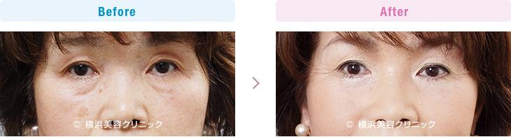 【60代女性】 お顔全体の若返りには、フェイスリフトと目元の若返りの手術を併せて行うとより効果的【横浜美容クリニック】