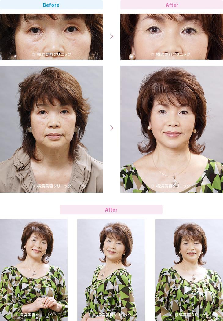 目の周りの若返り 【60代女性】 お顔全体の若返りには、フェイスリフトと目元の若返り手術を併せて行うとより効果的【横浜美容クリニック】