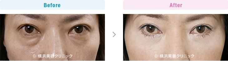 【40代女性】目元の疲れた暗い印象を、目の下のタルミ取りの手術で改善【横浜美容クリニック】