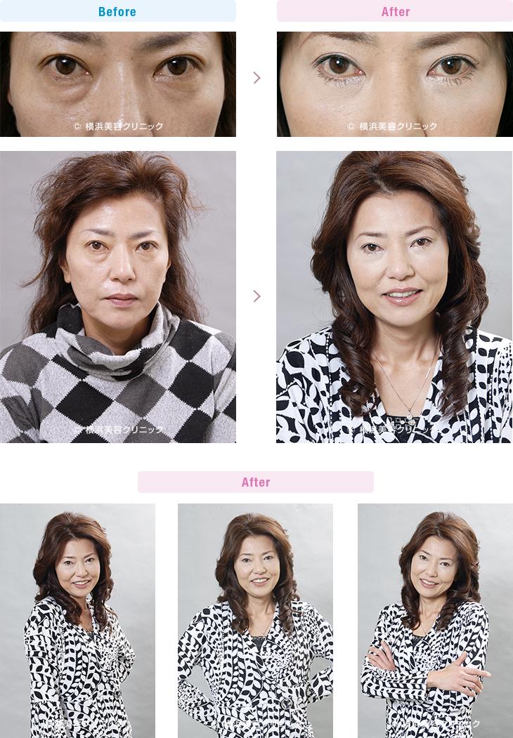 目の周りの若返り 【40代女性】目元の疲れた暗い印象を、目の下のタルミ取りの手術で改善【横浜美容クリニック】