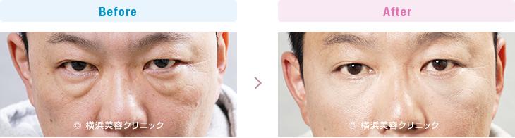 【40代男性】男性の場合は目の下に膨らみがあると、人相が悪く見えることが多いです。【横浜美容クリニック】