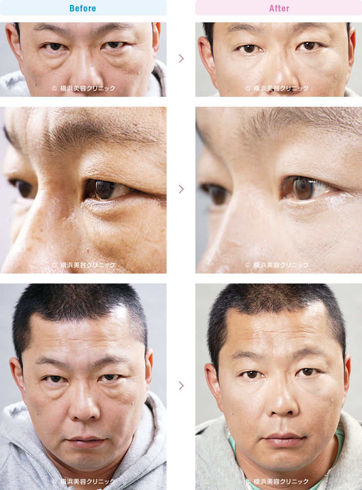 目の周りの若返り 【40代男性】 男性の場合は目の下に膨らみがあると、人相が悪く見えることが多いです【横浜美容クリニック】