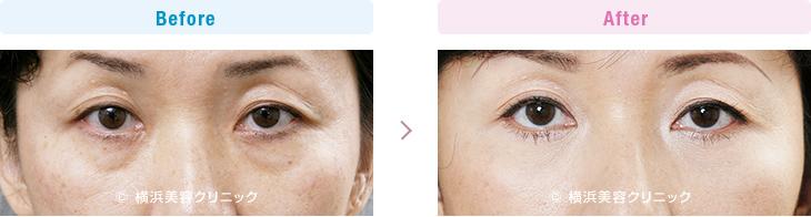 【40代女性】目元の若返りだけで、お顔全体が若返った印象を受けます。【横浜美容クリニック】
