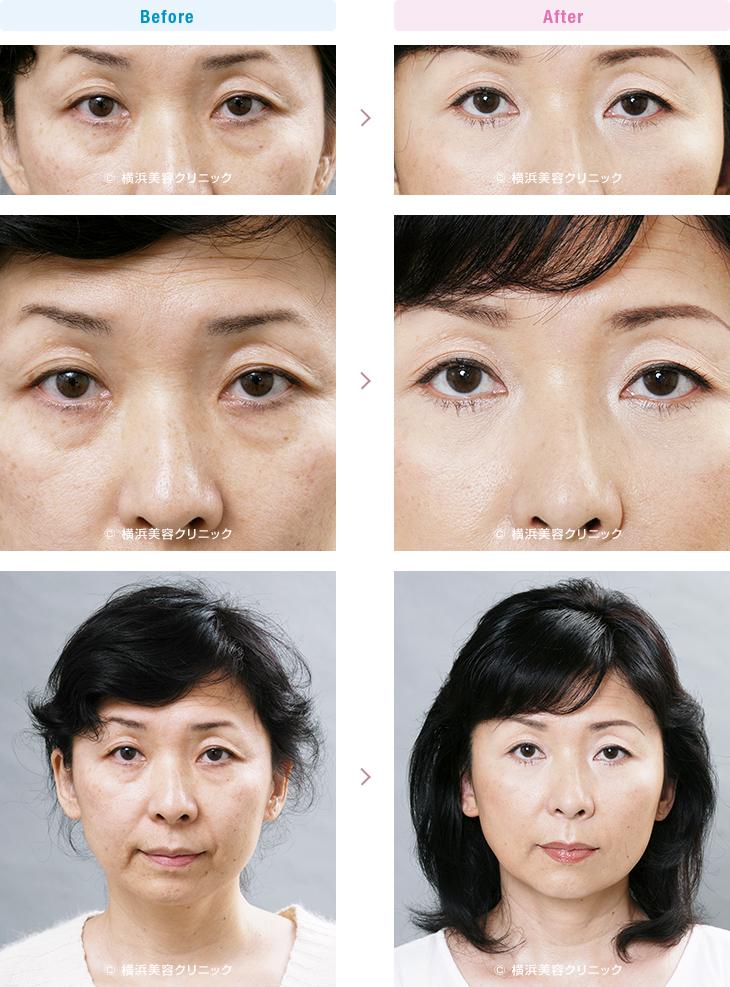 目の周りの若返り 【40代女性】 目元の若返りだけで、お顔全体が若返った印象を受けます。【横浜美容クリニック】