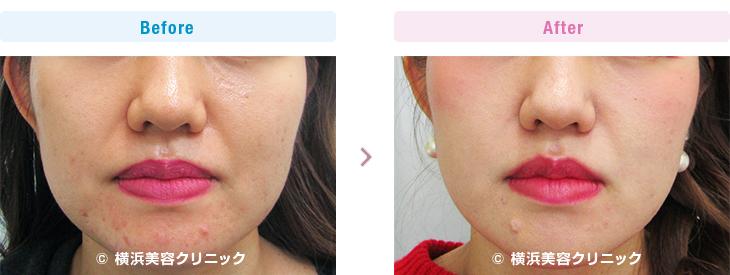 【20代女性】フェイスラインを細く、二重あごを目立たなく、ホウレイ線を目立たなくするには、小顔注射(BNLS)が有効です。