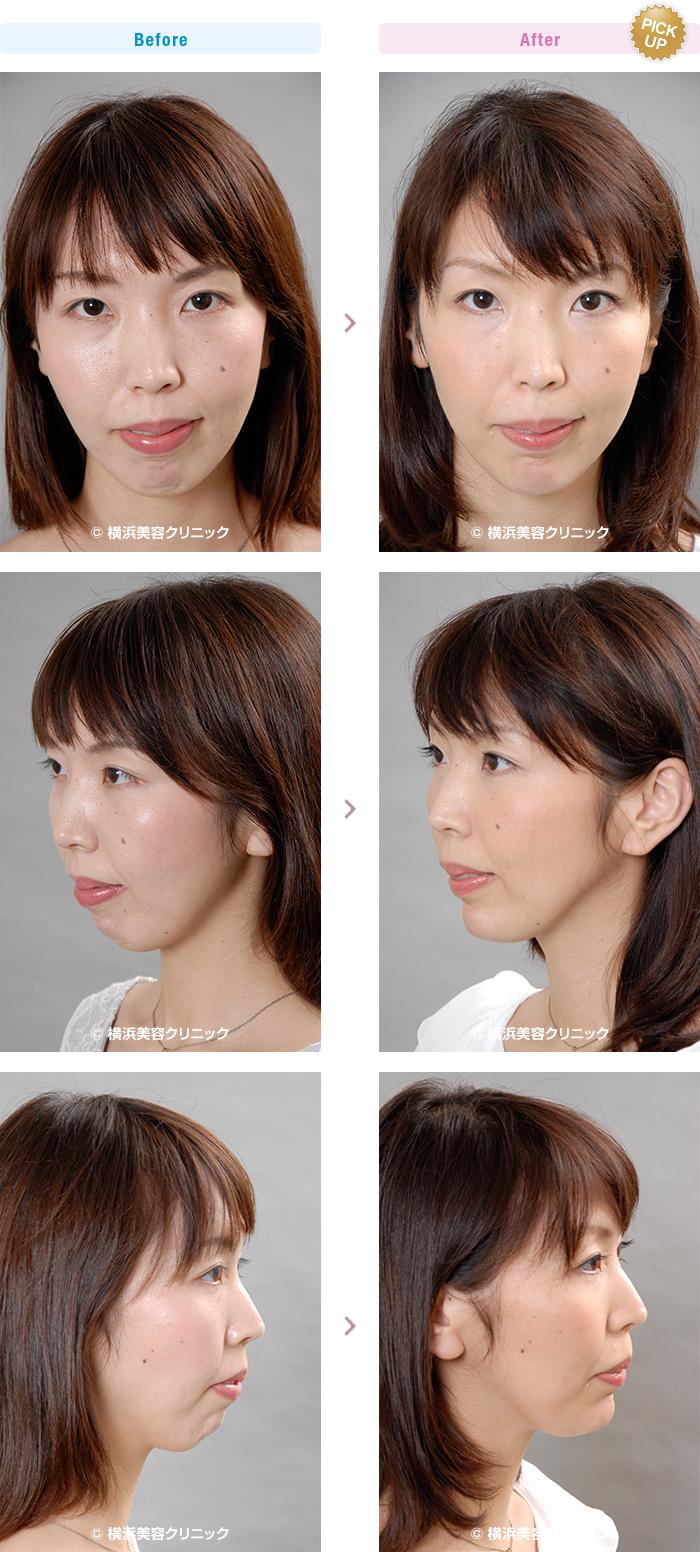 顎(あご)・二重あご 【20代女性】あごが後退している場合、あご形成術でアゴを前に出す手術が有効です。【横浜美容クリニック】