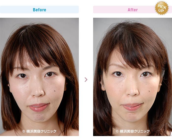 【20代女性】アゴが後退している場合、あご形成術であごを前に出す手術が有効です。