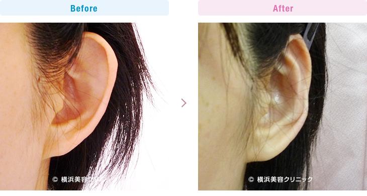 【20代女性】対耳輪の折れ曲がりが無い、完全な立ち耳の方です。(立ち耳症例1)【横浜美容クリニック】