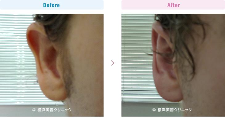右耳の上部だけが気になるので改善したい、という希望の方です。(立ち耳)