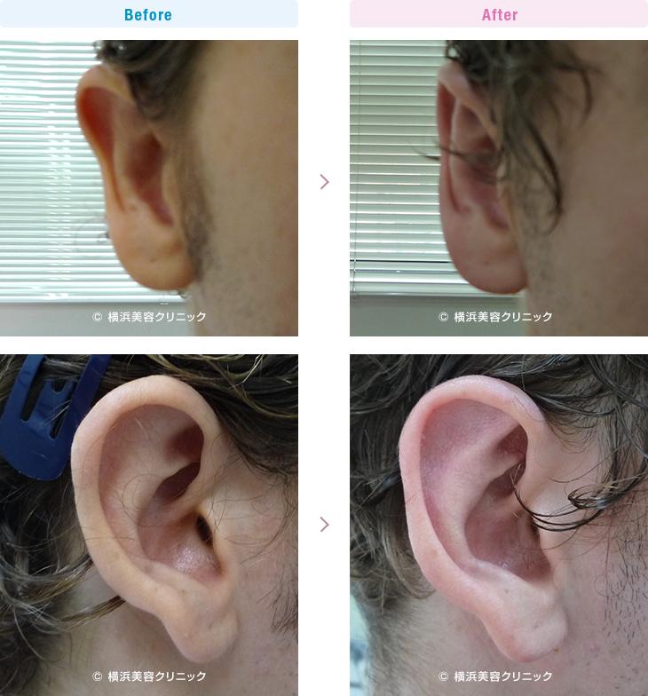 男性美容 右耳の上部だけが気になるので改善したい、という希望の方です。(立ち耳)【横浜美容クリニック】