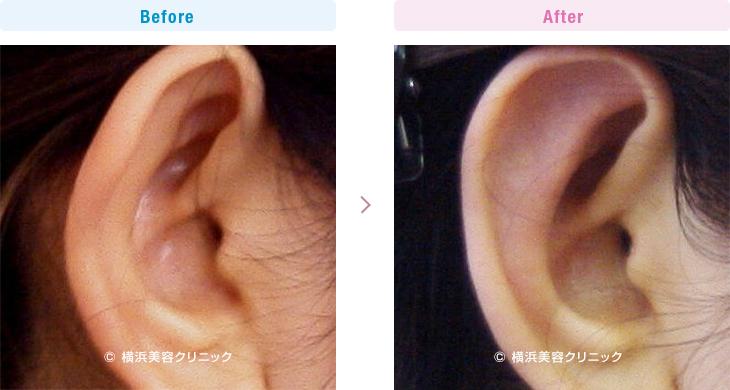 耳の美容外科・美容整形(立ち耳・耳垂裂) 【30代女性】片耳だけの立ち耳形成も、もちろん可能です。【横浜美容クリニック】
