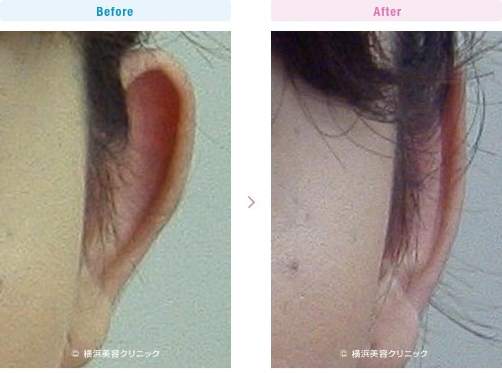 【20代女性】当院の立ち耳形成は、元に戻りにくいです。【横浜美容クリニック】