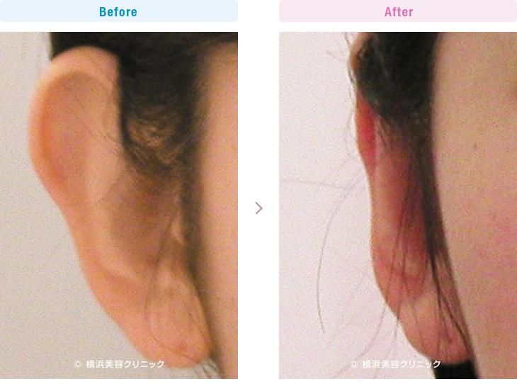 【30代女性】耳が正面を向いている立ち耳には、立ち耳形成が有効です。【横浜美容クリニック】