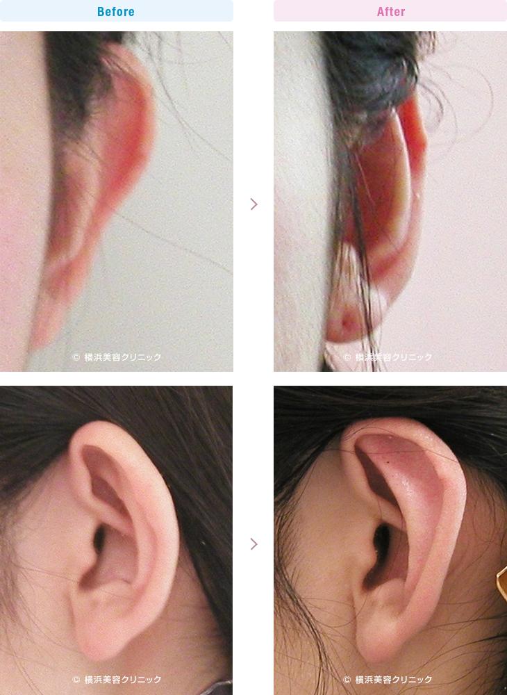 耳の美容外科・美容整形(立ち耳・耳垂裂) 【30代女性】左の耳垂裂形成術を行いました。(立ち耳症例5)2【横浜美容クリニック】