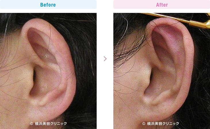耳の美容外科・美容整形(立ち耳・耳垂裂) 【30代女性】左の耳垂裂形成術を行いました。(立ち耳症例6)2【横浜美容クリニック】