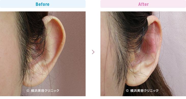 【20代女性】片耳だけの立ち耳にも、立ち耳形成術で改善可能です。【横浜美容クリニック】