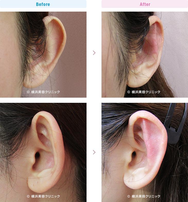 耳の美容外科・美容整形(立ち耳・耳垂裂) 【20代女性】片耳だけの立ち耳にも、立ち耳形成術で改善可能です。【横浜美容クリニック】