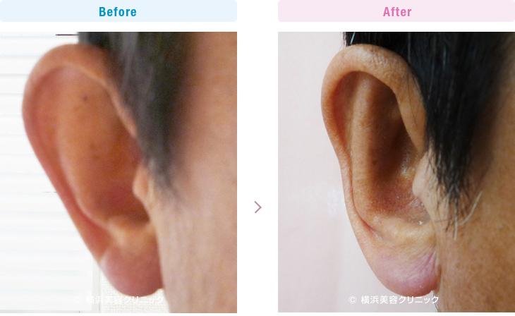 完全な立ち耳の症例です。(立ち耳)