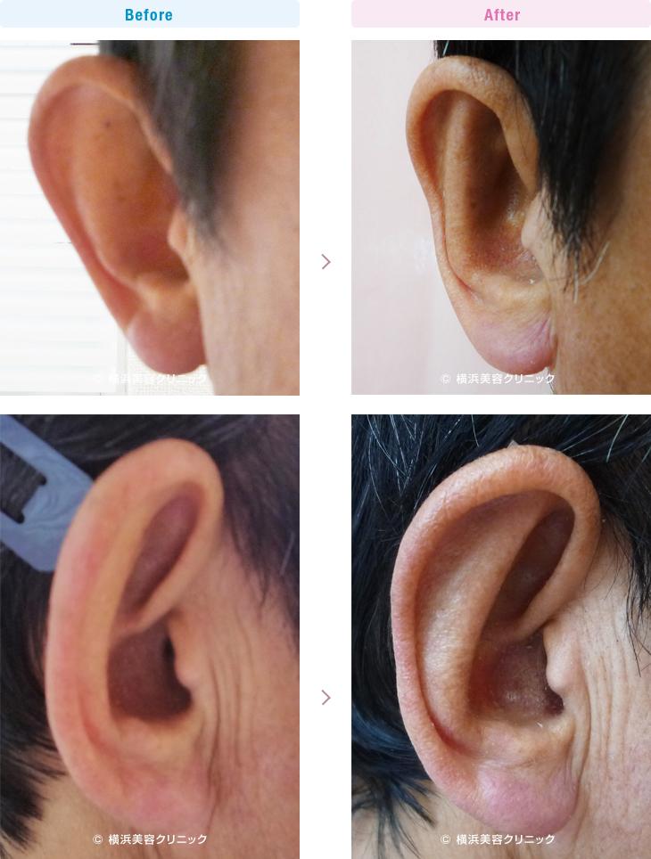 耳の美容外科・美容整形(立ち耳・耳垂裂) 【50代男性】耳が大きく見える「立ち耳」には、立ち耳形成が効果的です。【横浜美容クリニック】
