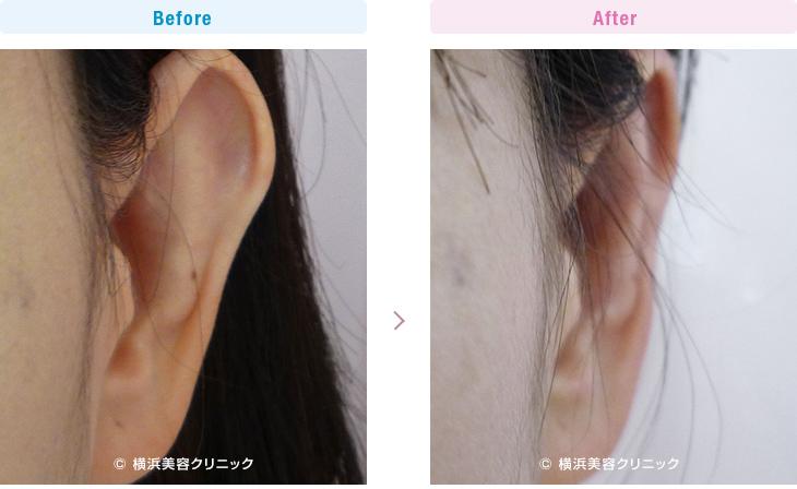 【30代女性】上部だけの軽度な立ち耳も、立ち耳形成で簡単に改善することが可能です。【横浜美容クリニック】