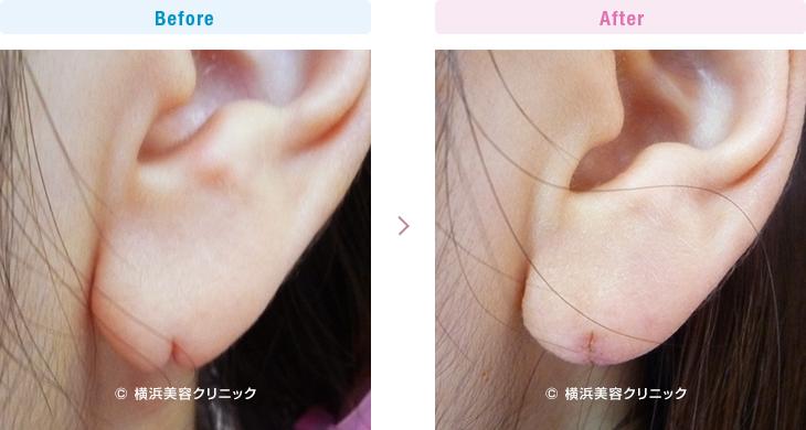 【20代女性】ピアスによって裂けてしまった耳たぶ(耳垂裂)は、耳垂裂形成によって簡単に治すことが可能です。【横浜美容クリニック】