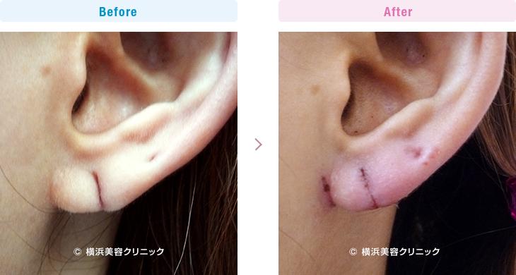 【30代女性】ピアスによって裂けてしまった耳たぶ(耳垂裂)は、耳垂裂形成によって簡単に治すことが可能です。【横浜美容クリニック】