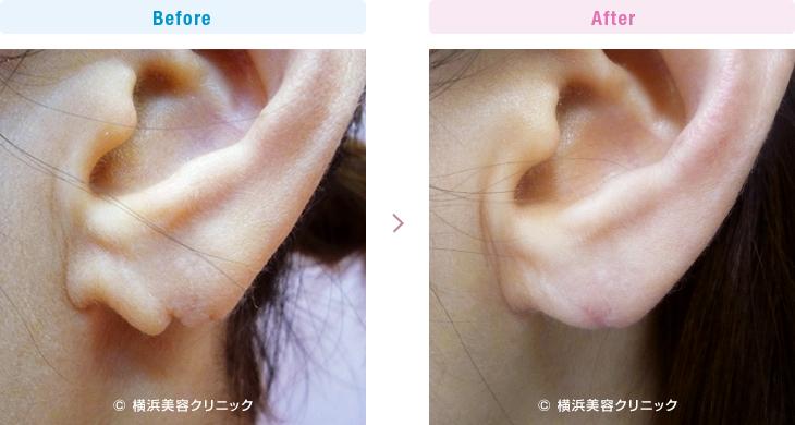 【30代女性】ピアスによって裂けてしまった耳たぶ(耳垂裂)は、耳垂裂形成で簡単に治すことが可能です。【横浜美容クリニック】