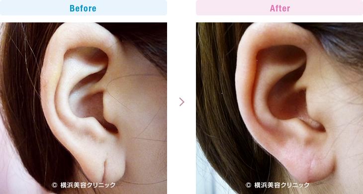 耳の美容外科・美容整形(立ち耳・耳垂裂) 【20代女性】ピアスによって裂けてしまった耳たぶ(耳垂裂)は、耳垂裂形成で簡単に治すことが可能です。【横浜美容クリニック】