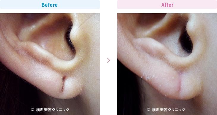 【20代女性】ピアスの穴が大きくなり、あるいは下に伸びて裂けそうになった場合も、ピアスホール形成術で治すことが可能です。