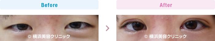 目の施術(二重・涙袋など) 【20代女性】 腫れぼったい一重の方には、脱脂を同時に行う部分切開法がお勧め【横浜美容クリニック】