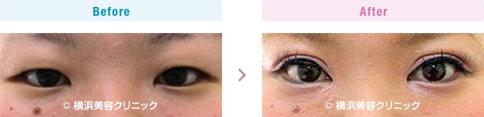 目の施術(二重・涙袋など) 【30代女性】 幅広平行型二重まぶたを作るには、全切開法が最も効果的【横浜美容クリニック】