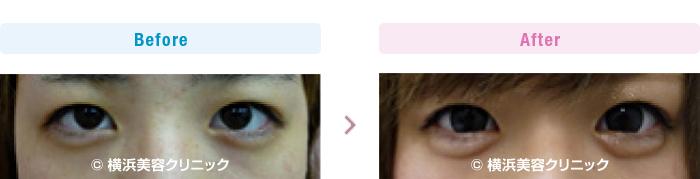 【10代女性】 ヒアルロン酸注入により涙袋を作りました (目袋形成)