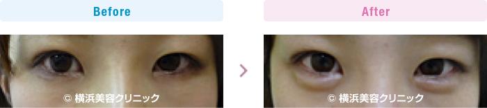 目の施術(二重・涙袋など) 【20代女性】 ヒアルロン酸注入により涙袋を作りました (目袋形成)【横浜美容クリニック】