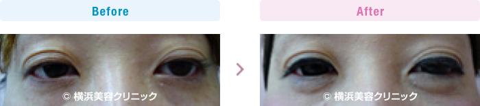 目の施術(二重・涙袋など) 【30代女性】 ヒアルロン酸注入により涙袋を作りました (目袋形成)【横浜美容クリニック】