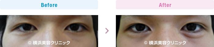 目の施術(二重・涙袋など) 【20代男性】 ヒアルロン酸注入により涙袋を作りました (目袋形成)【横浜美容クリニック】