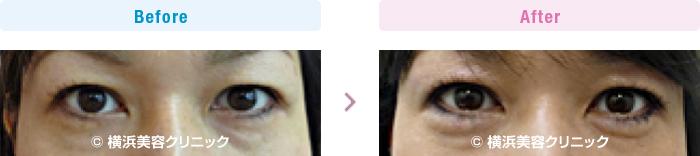 目の施術(二重・涙袋など) 【40代女性】 ヒアルロン酸注入により涙袋を作りました (目袋形成)【横浜美容クリニック】