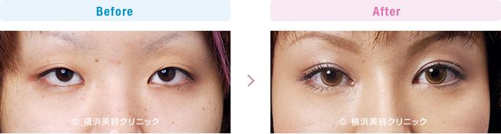 【20代女性】目と目の間が離れて見える方には埋没法と同時に目頭切開、隆鼻術が効果的
