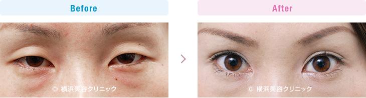 【20代女性】 目が小さく見える方には二重まぶた・埋没法+目頭切開がお勧め【横浜美容クリニック】