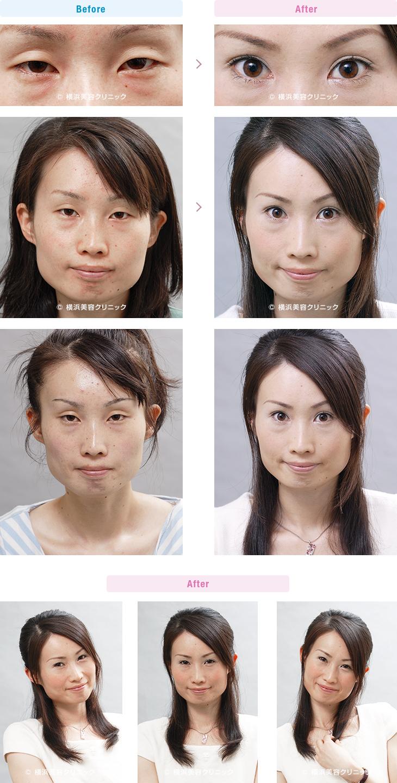 【20代女性】 目が小さく見える方には二重まぶた・埋没法+目頭切開がお勧め