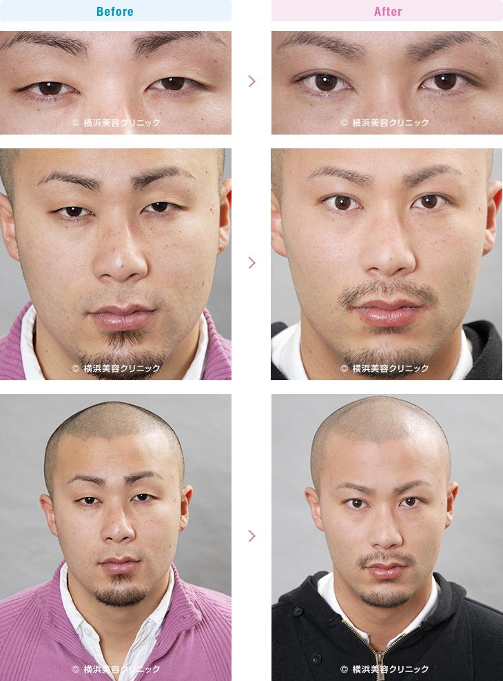 男性美容 特に希望は無く、お任せで二重まぶたをつくりました。(二重 埋没法)【横浜美容クリニック】